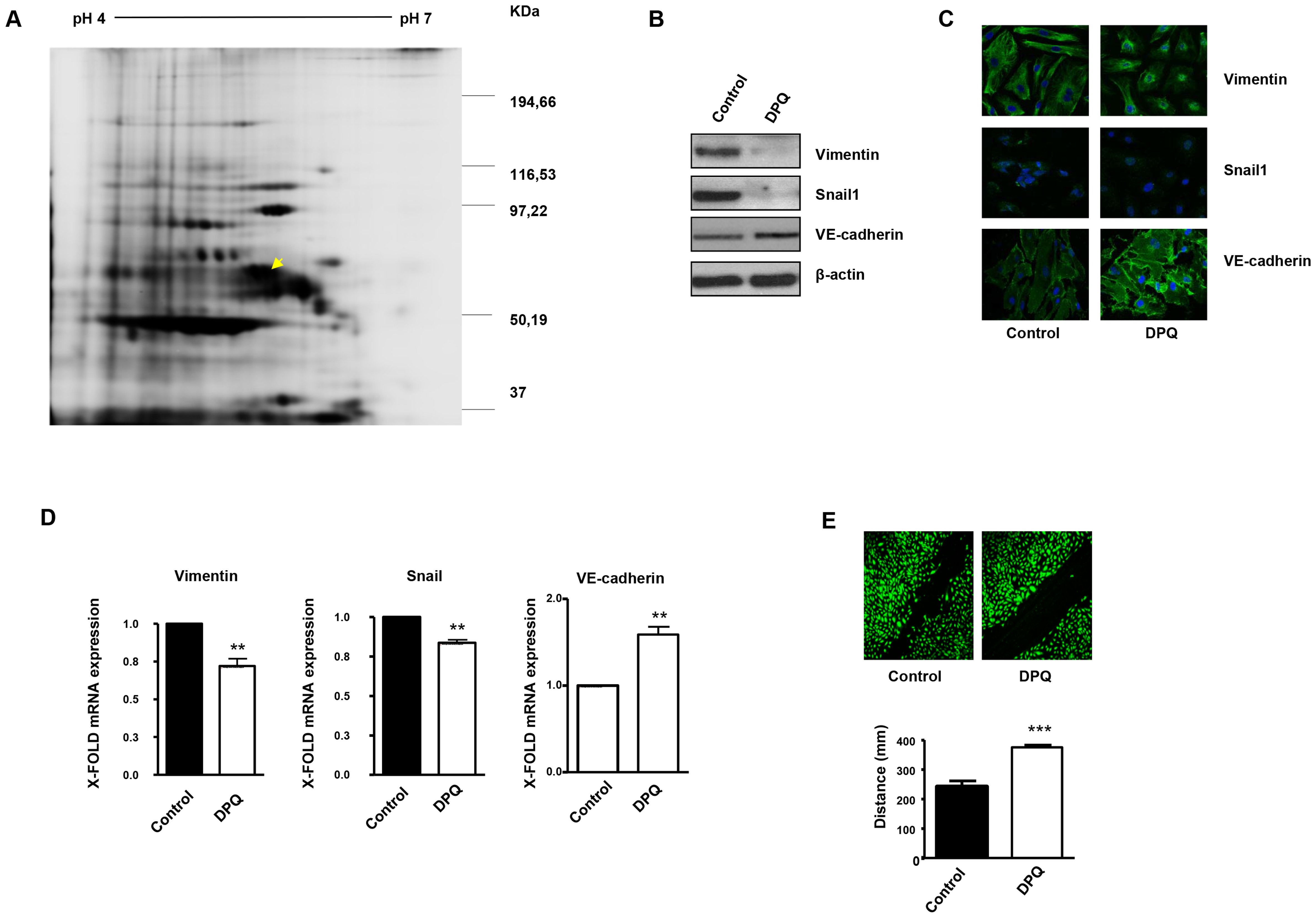 PARP inhibition down-regulates vimentin expression and inhibits endothelial-to-mesenchymal transition in HUVECs.
