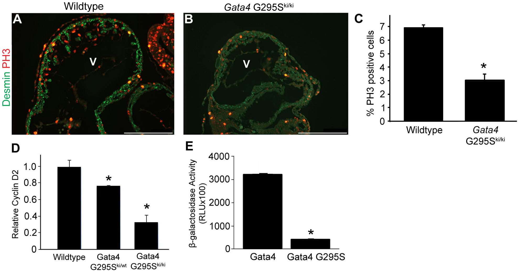 G295S mutation in <i>Gata4</i> results in cardiomyocyte proliferation defects.