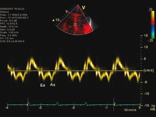 Tkáňová dopplerovská echokardiografie septálního mitrálního anulu, prokazující zřetelně nízkou časně diastolickou relaxační rychlost pohybu anulu, která v kombinaci s hodnocením transmitrálního průtoku (obr. 1) ukazuje na zvýšení plnicího tlaku levé komory při její diastolické dysfunkci.