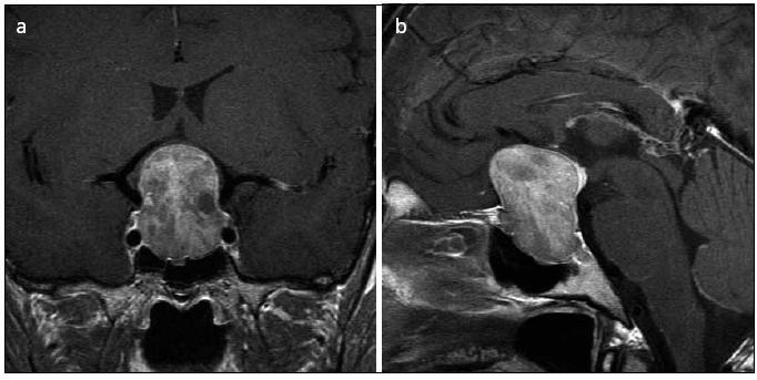 Obr. 2a, b. Symptomatický makroadenom hypofýzy způsobující kompresi chiazmatu, prominující do mediálního kompartmentu levého kavernózního splavu (koronární a sagitální řez).
