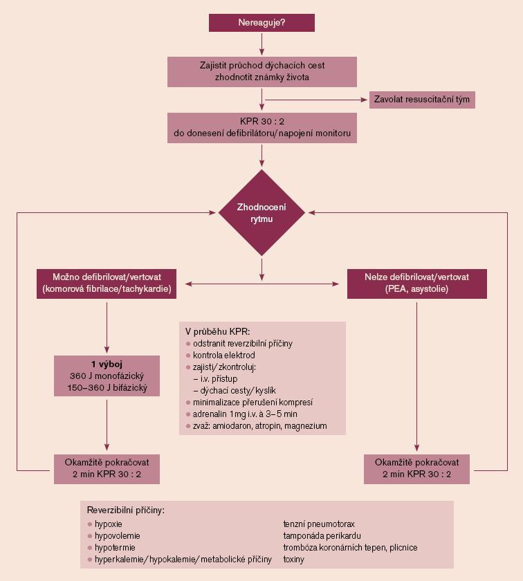 Algoritmus ALS u dospělých při mimonemocniční zástavě [25]. ALS (advance life support) – rozšířená neodkladná resuscitace.