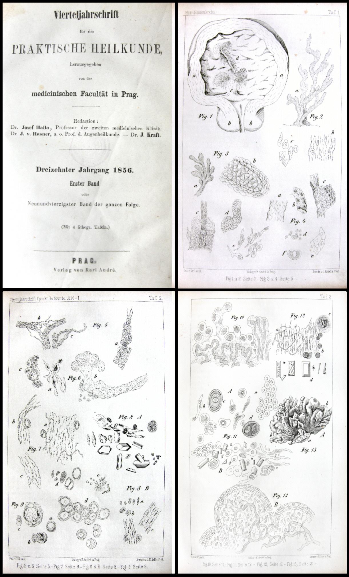 Ilustrace cytologických nálezů z nátěrů moči při karcinomu močového měchýře z Lamblovy originální publikace.