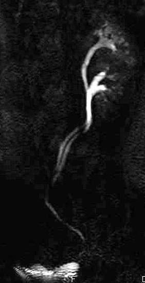 Zdvojený dutý systém ledviny - ureter fissus.