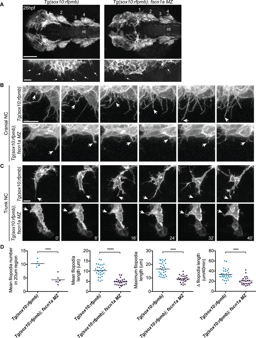<i>fscn1a</i> is required for filopodia formation in NC cells.