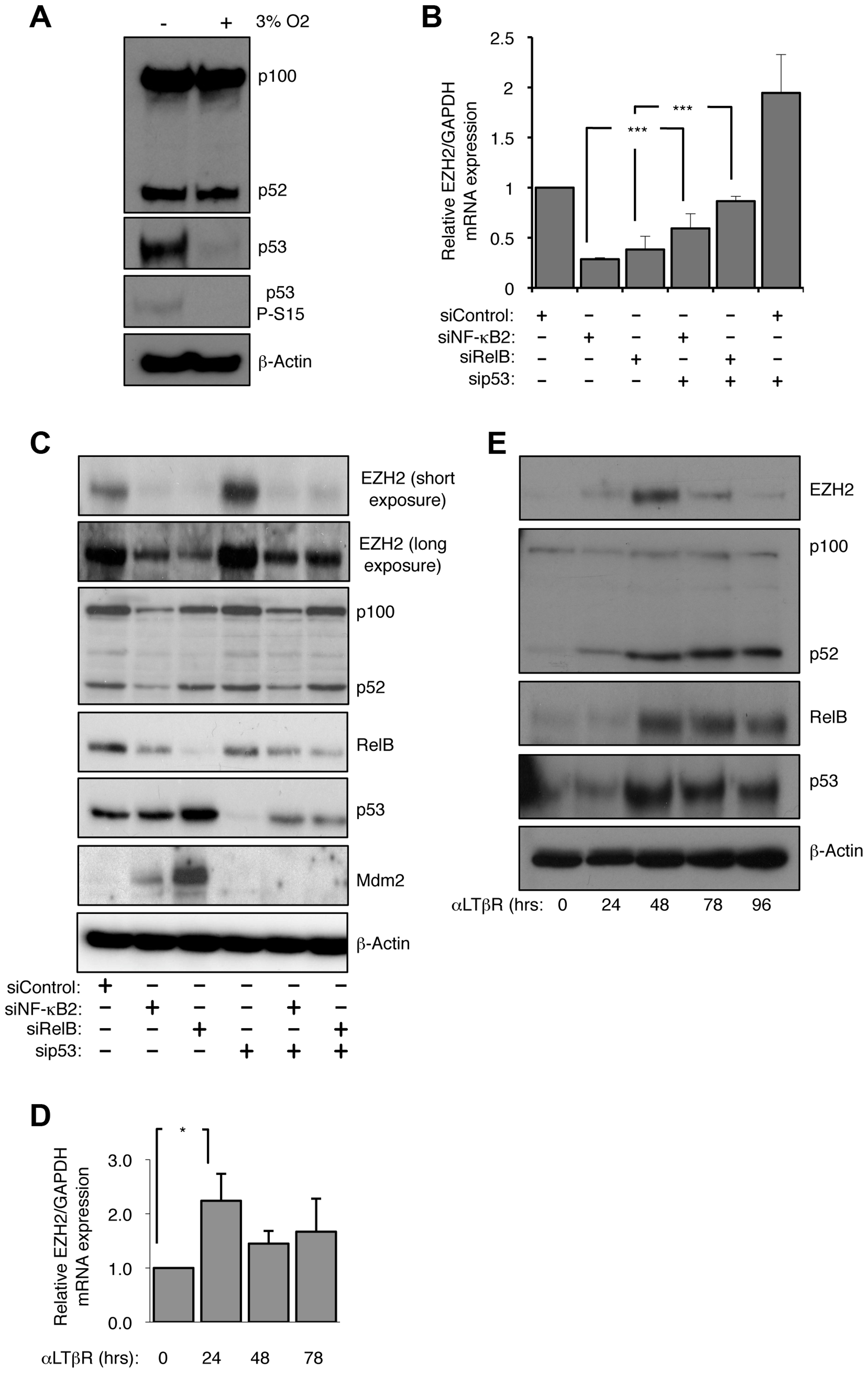 EZH2 is an NF-κB regulated target gene.