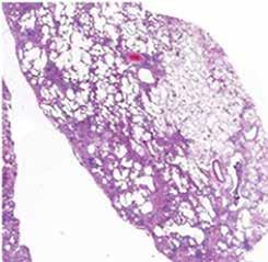 Histopatologický obraz UIP s patrnou časovou a prostorovou heterogenitou postižení