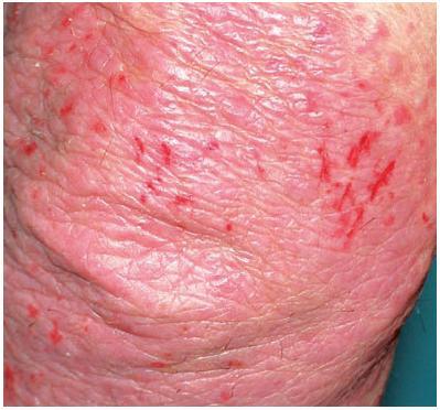 Exkoriace u psoriasis vulgaris