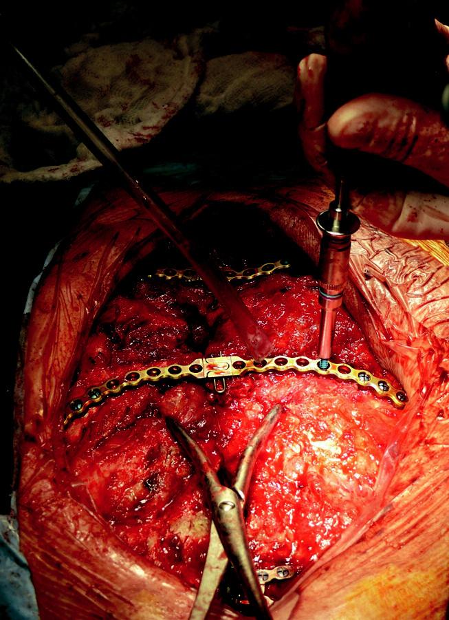 Implantace dlah – zavedení a dotažení šroubů.