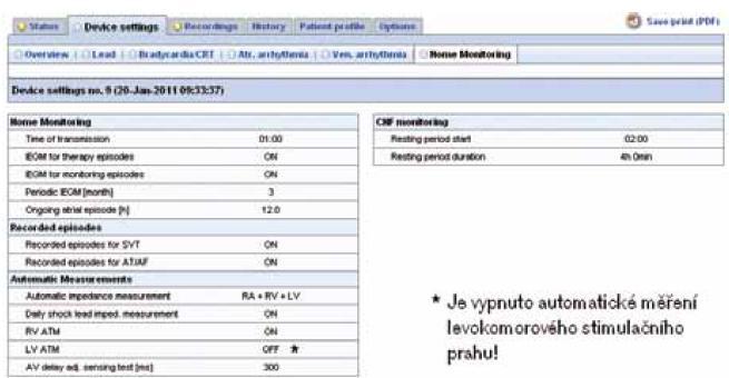 """Programace implantátu – biventrikulárního defibrilátoru Lumax 540 HF-T (parametrů týkajících se HM) zobrazitelná v systému Home Monitoring. V """"trendových"""" datech jsou zobrazeny informace o aktuálním programování implantátu. U tohoto pacienta jsou data odesílána v 1.00 hod, od všech epizod je přenášen intrakardiální elektrogram (IEGM), periodické IEGM je odesíláno každé 3 měsíce, je zapnuto automatické měření impedance na všech elektrodách, automatické měření pravokomorového prahu, je vypnuté automatické měření levokomorového prahu. Pro hodnocení klidové tepové frekvence se využívá doba od 2.00 hod v noci po dobu 4 hod."""