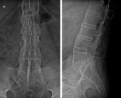 Súvislé syndezmofyty, kvadratizácia tiel stavcov, osifikácia interspinózneho ligamenta u pacienta s pokročilou AS. Archív autora