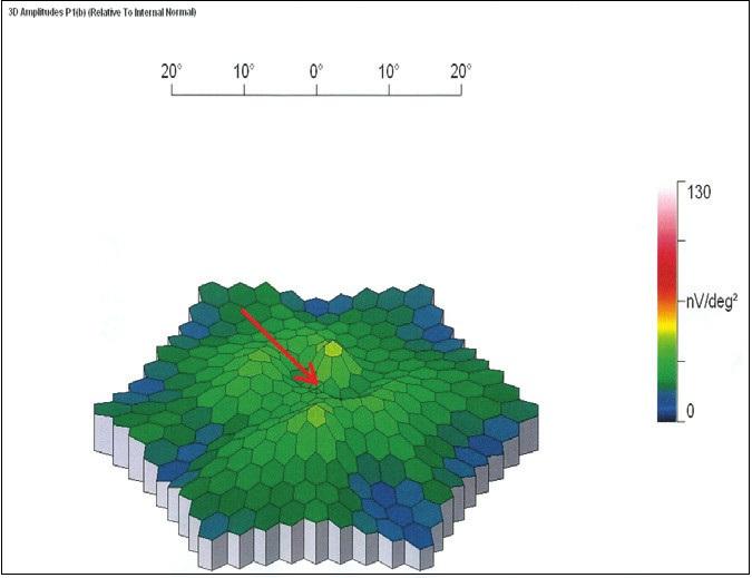 Obr. 3c. MfERG levého oka: Vymizení foveolární aktivity (šipka) a pokles parafoveolární aktivity v dolní části makuly odpovídající lokalizaci atrofie RPE na 50% normy ve 3D obrazu. Zevně v oblasti mezi 14° a 30° excentricity je aktivita sítnice normální, nižší v porovnání s pravým okem