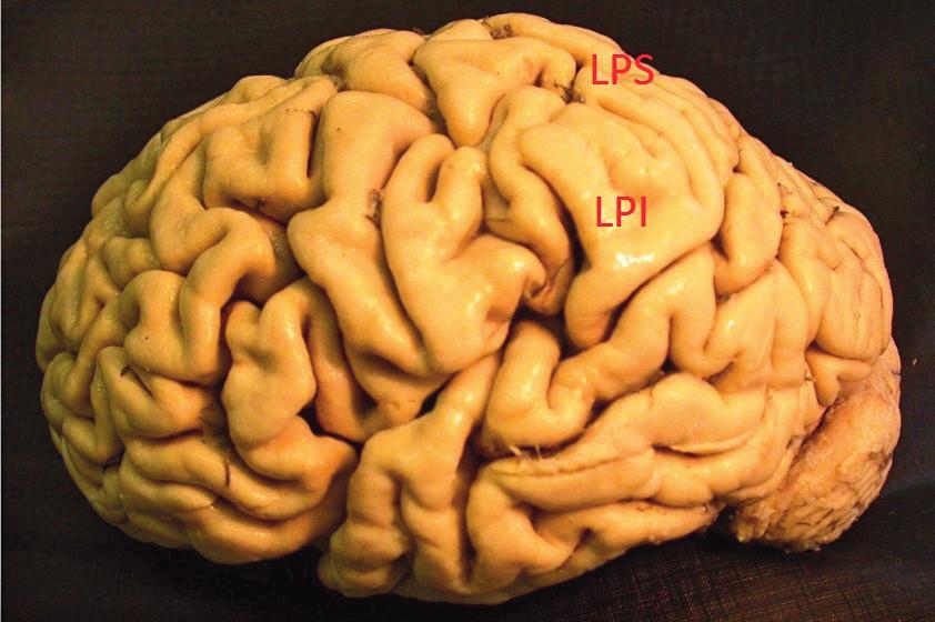 Zevní plocha levé hemisféry, temenní lalok dělí intraparietální rýha na dva oddíly: LPS – lobulus parietalis superior, LPI – lobulus parietalis inferior