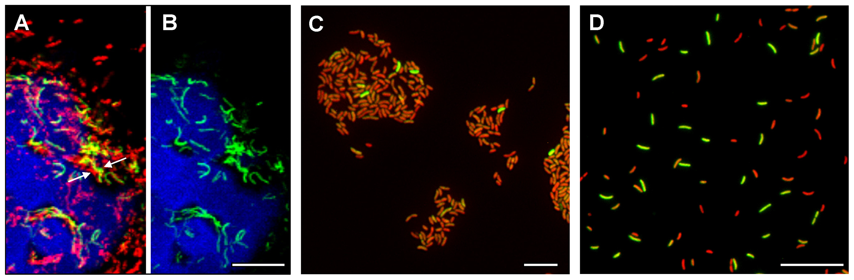 Heterogeneous expression of <i>tcpA-gfp(ASV)</i> in rabbit ileal loops and during in vitro conditions of growth that induce the expression of <i>V. cholerae</i> virulence genes.