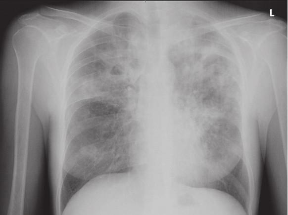 RTG snímek plic matky při přijetí na infekční oddělení. Fig. 1. Chest X-ray of mother on admission.