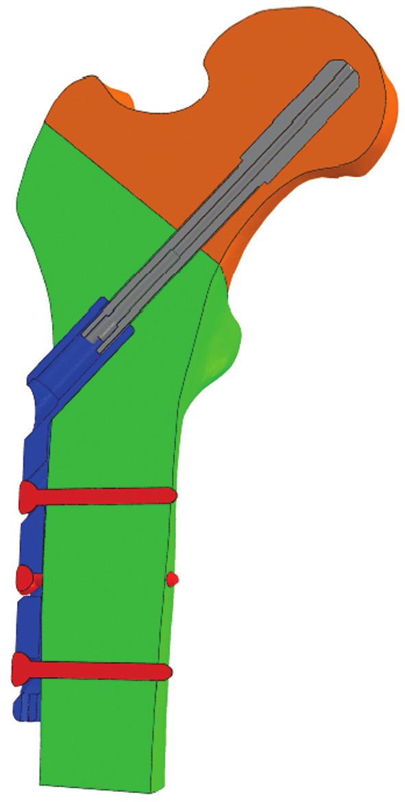 Obr. 3a: Modelová pozice umístění šroubu DHS v oblasti dolní třetiny krčku femuru Fig. 3a: Model situation with the femoral neck screw placed in the distal third of the neck