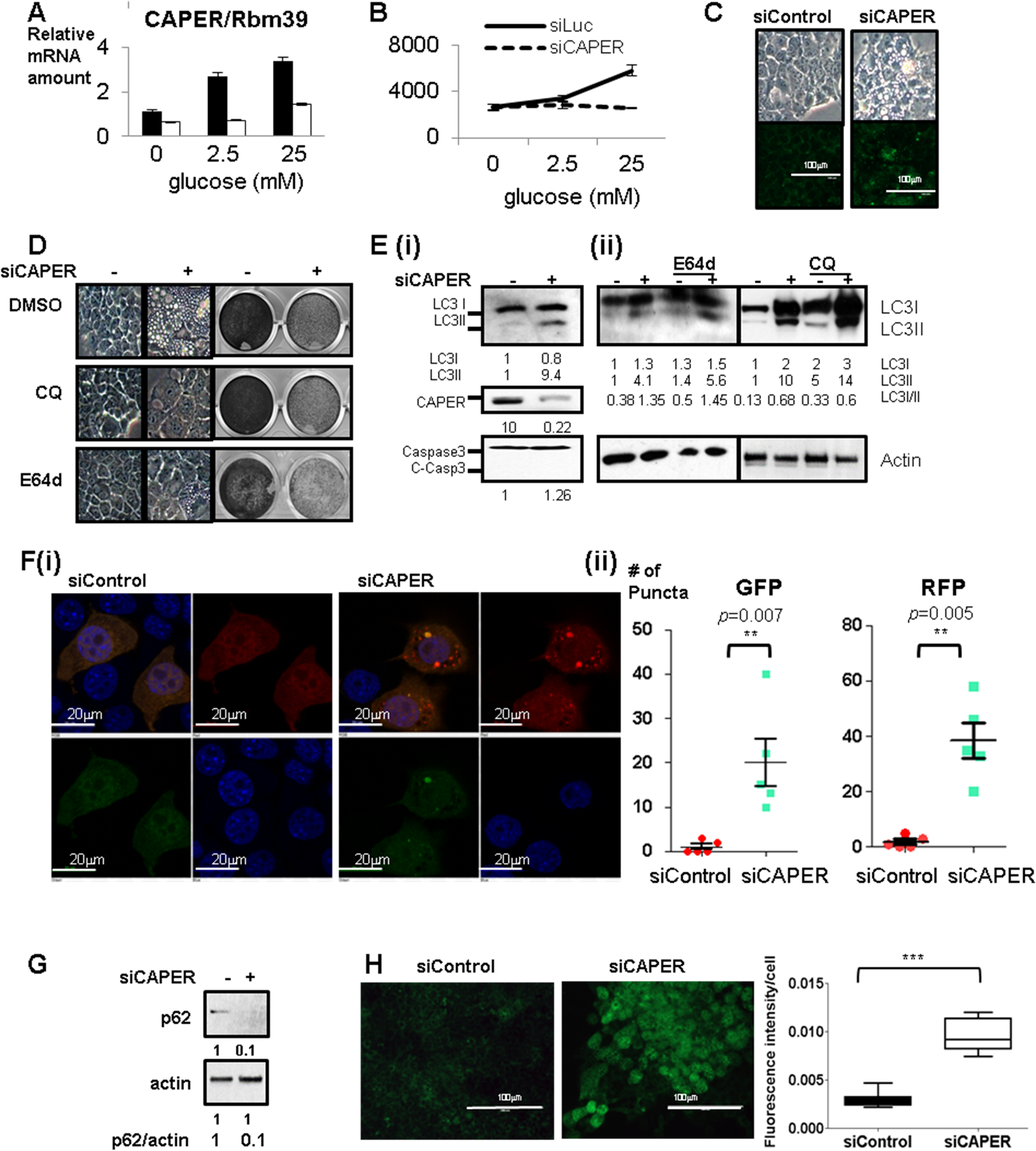 Inhibition of glucose-dependent increased CAPER protein expression suppresses cell proliferation and induces autophagy-mediated vacuolization.