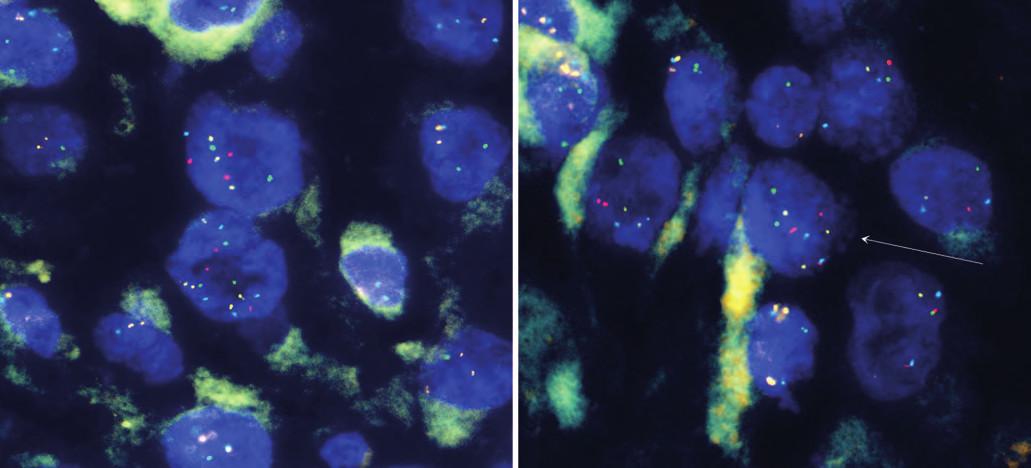Amplifikace genů CCND1, RREB1, MYB z tumoru.