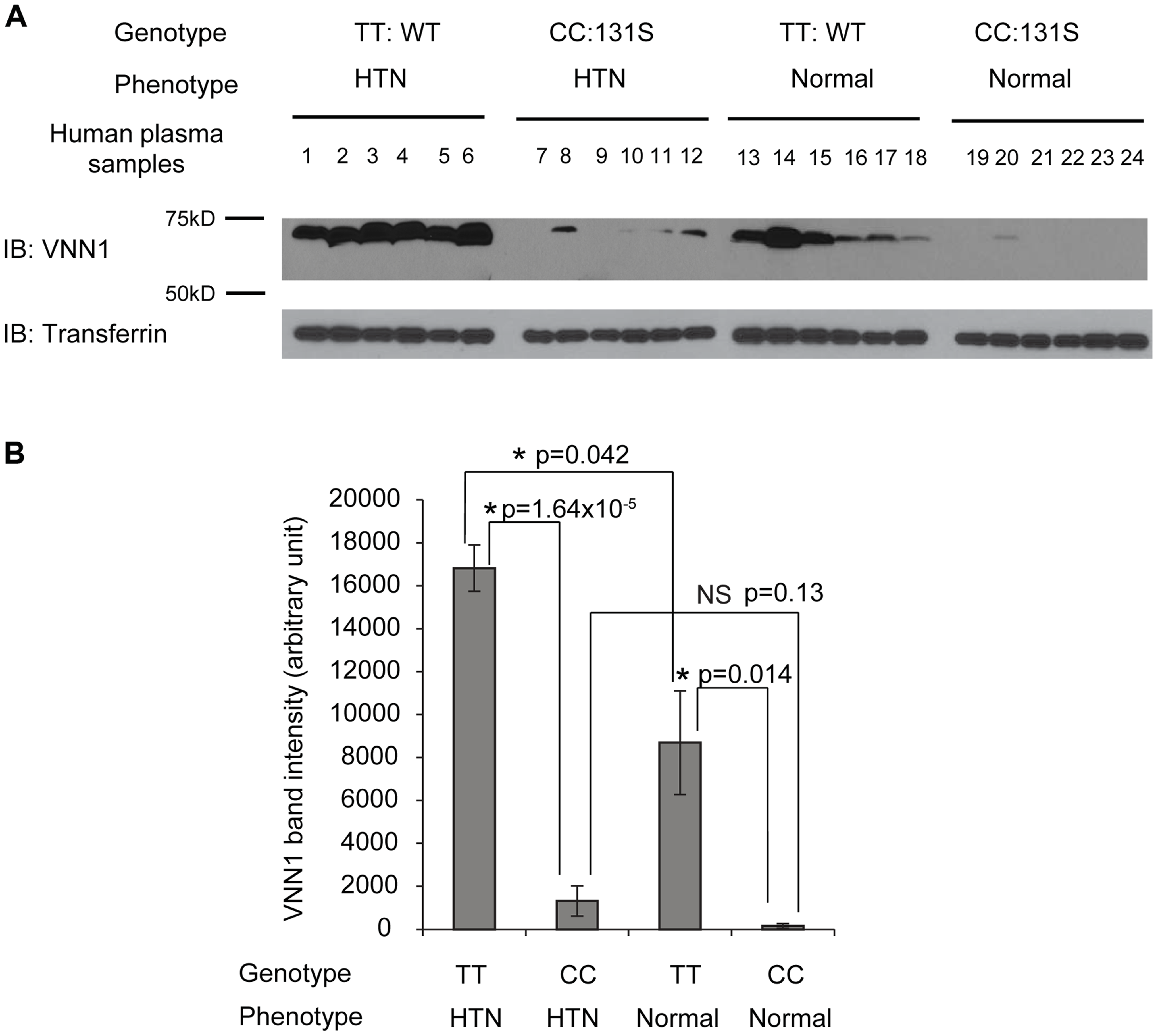 The vanin-1 expression in human plasma samples is closely linked with both genotypic N131S mutation and phenotypic HTN.