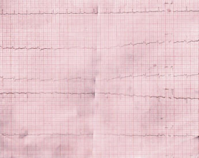 EKG záznam z dokumentácie.
