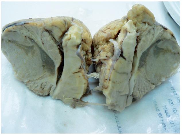 Fig 1. Macroscoppic apperance of the tumor