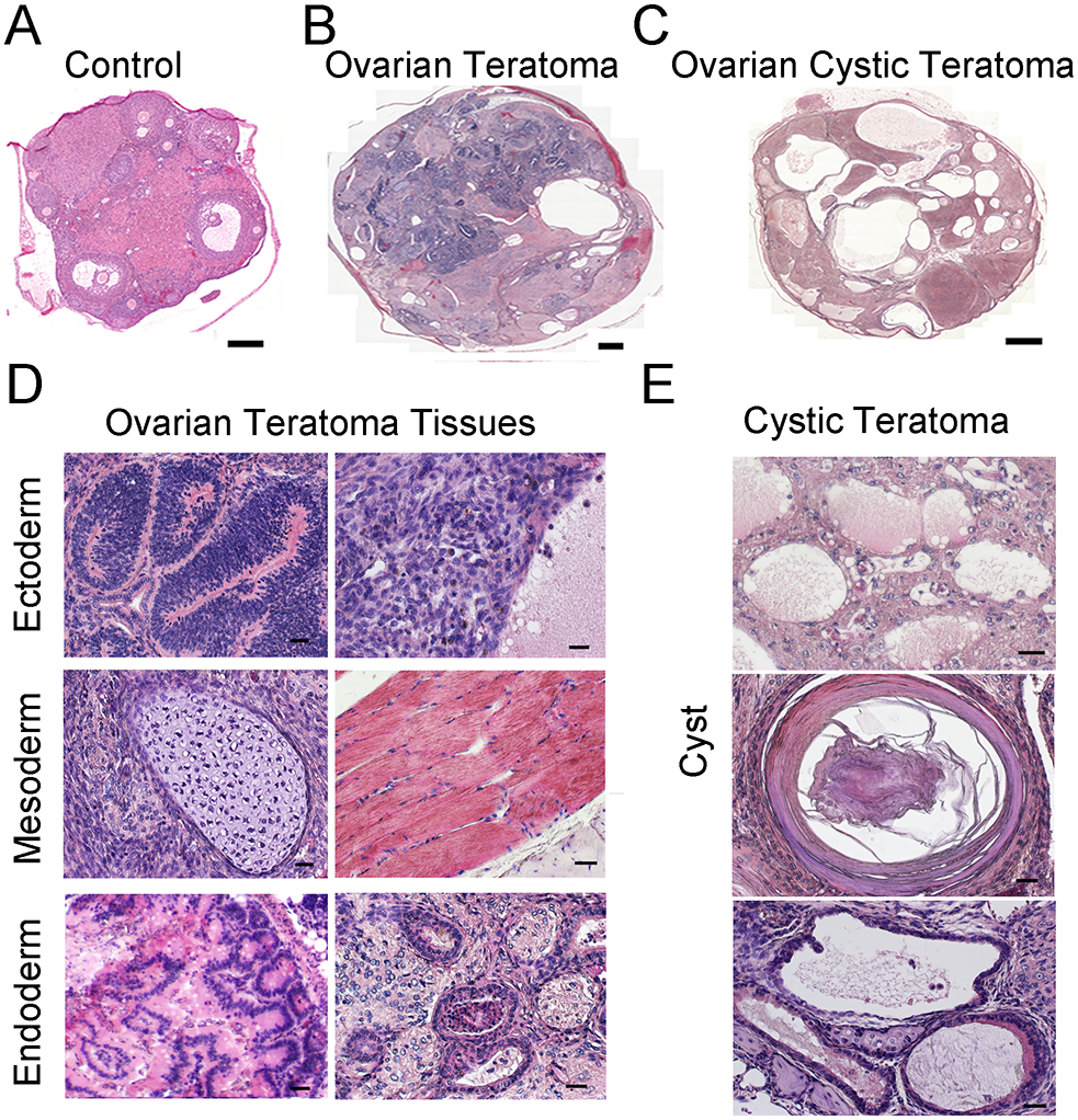 Formation of ovarian teratomas in mice with conditional <i>Rb1</i> inactivation in oocytes.