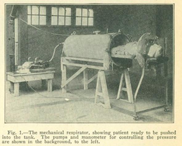 """Ventilace negativním tlakem – """"ocelové plíce"""" Fig. 1: Negative pressure ventilator – """"iron lung"""""""
