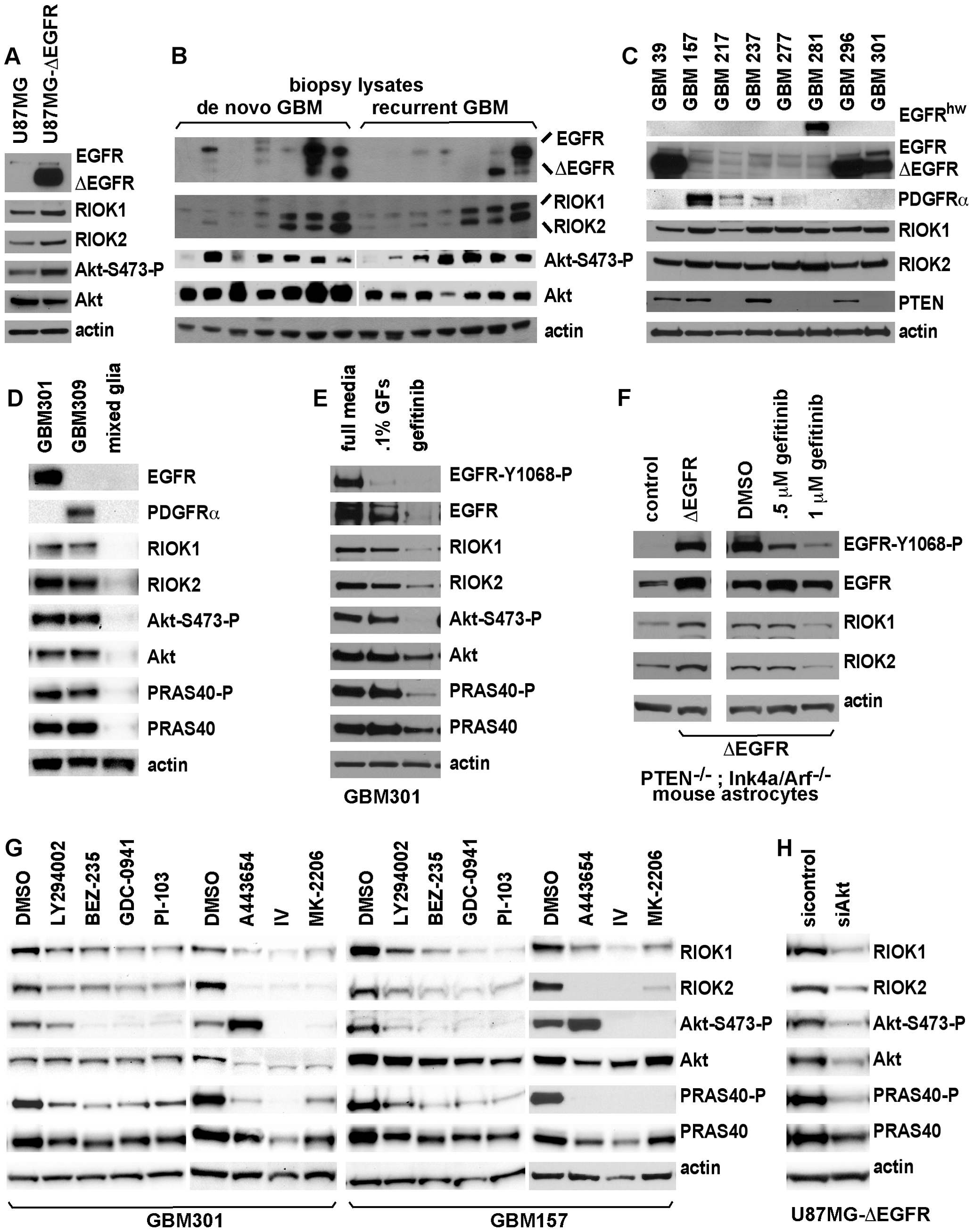 Expression of RIO kinases is associated with EGFR and Akt activity in GBM cells.