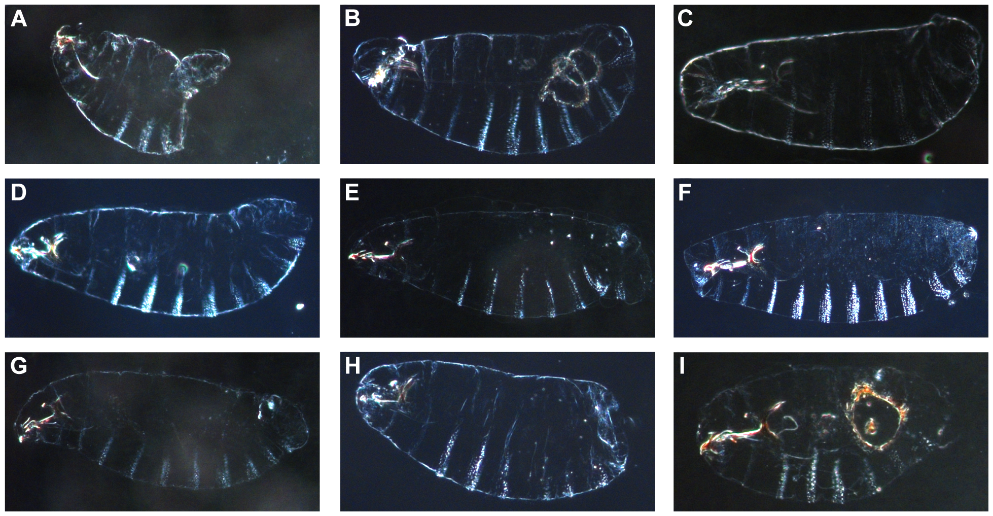 Cuticular defects observed in the nine lethal regions from the <i>D. melanogaster X</i>-chromosome.