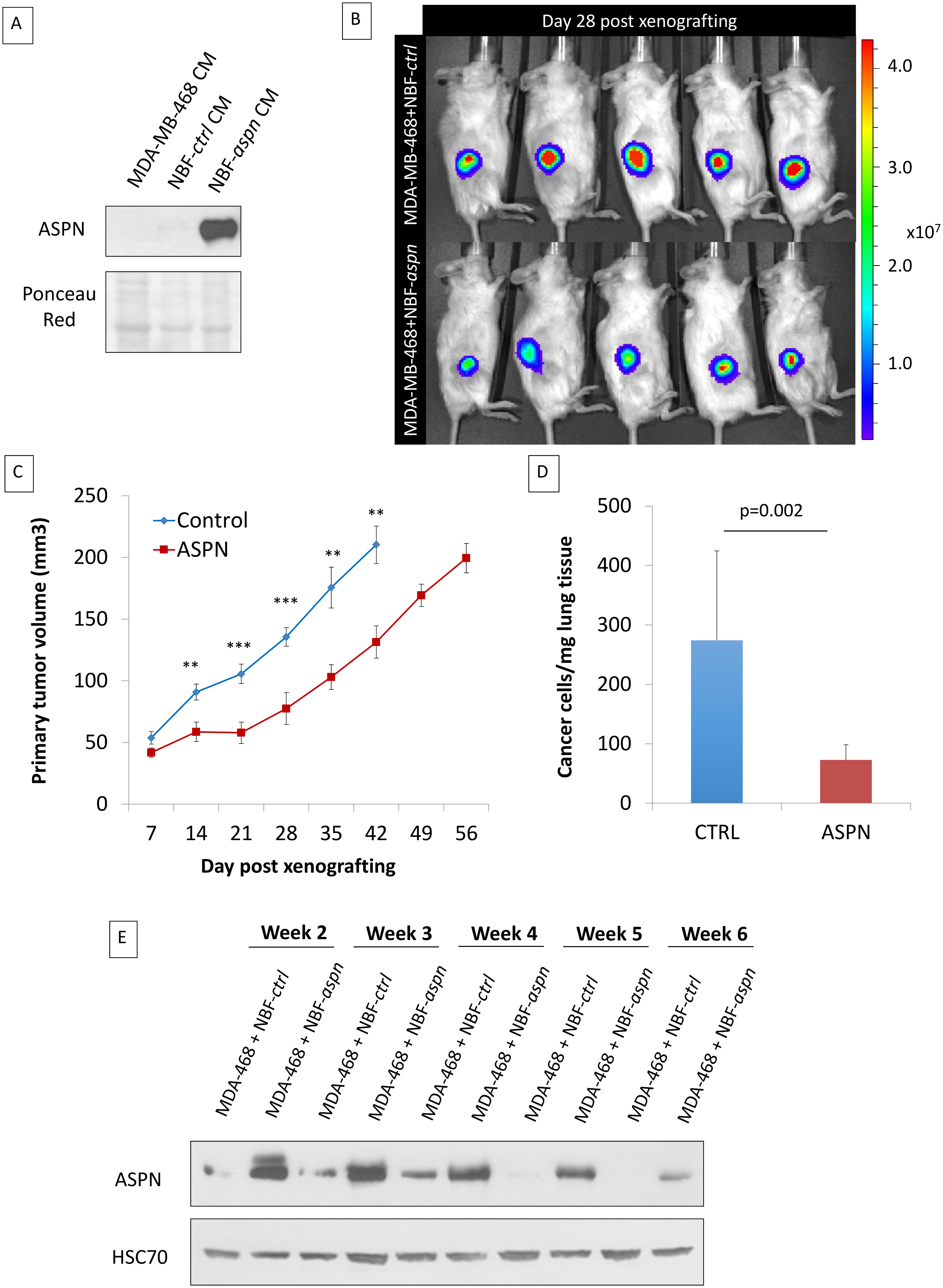 Co-injection of cancer cells and fibroblasts overexpressing asporin reduces primary breast cancer tumor growth and lung metastasis formation in vivo.