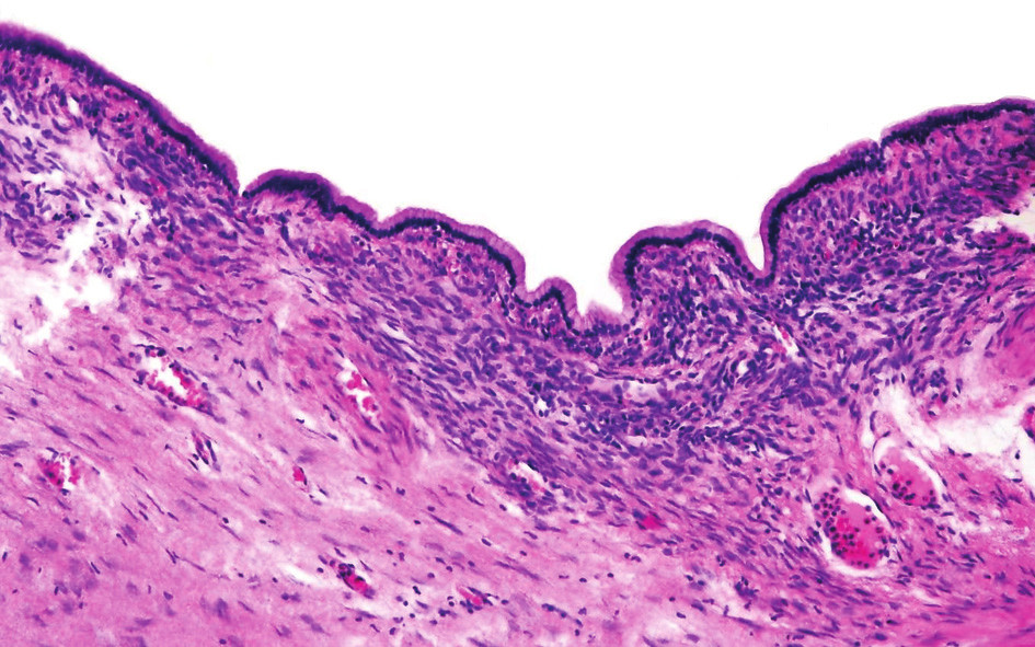 Cysty jsou vystlány jednovrstevným hlenotvorným cylindrickým epitelem nasedajícím na bazální membránu. Subepiteliálně mezenchymální ovarian-like stroma; vnější vrstva tvořena denzním hyalinizovaným vazivem Fig. 2. The cysts are lined with one-layer muciparous columnar epithelium which adjoins the basal lamina.Sub-epithelially mesenchymal ovarian-like stroma: the outer layer consist of dense hyalinized fibrous tissue
