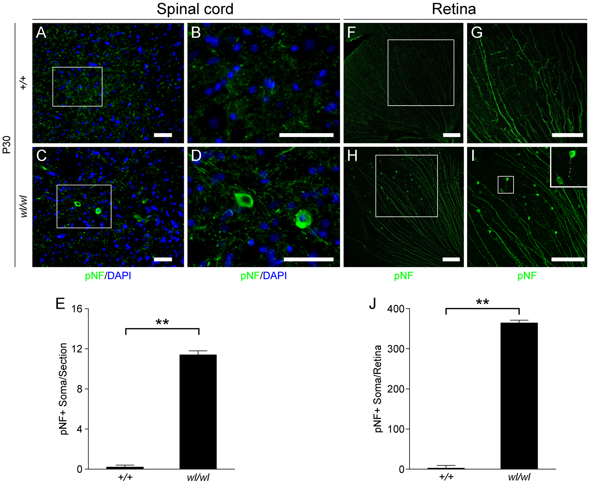 Phosphorylated neurofilament (pNF) accumulates in somas of spinal cord neurons and retinal ganglion cells in <i>wl/wl</i> mice.
