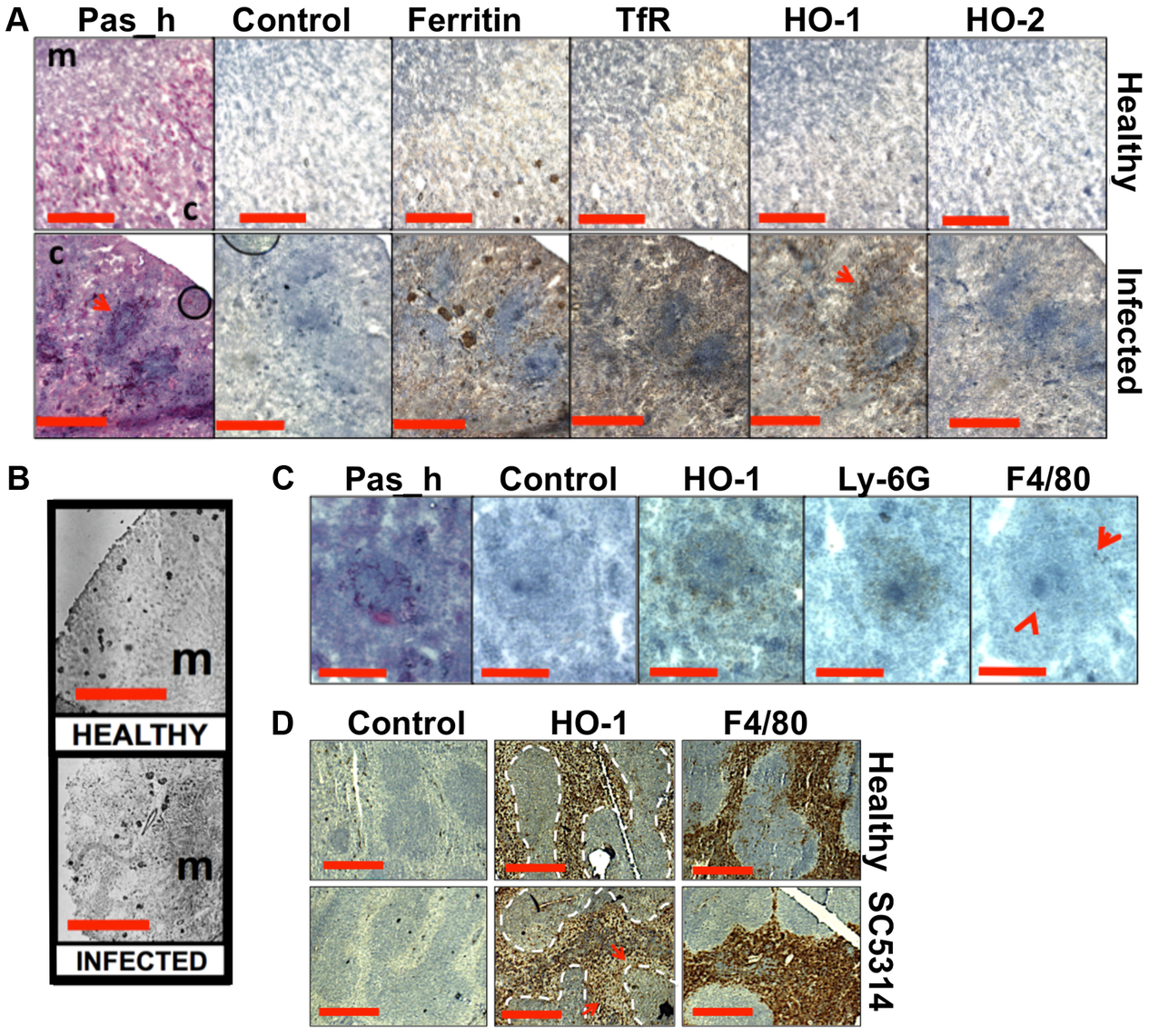 Systemic candidiasis disturbs host renal iron homeostasis and affects splenic function.