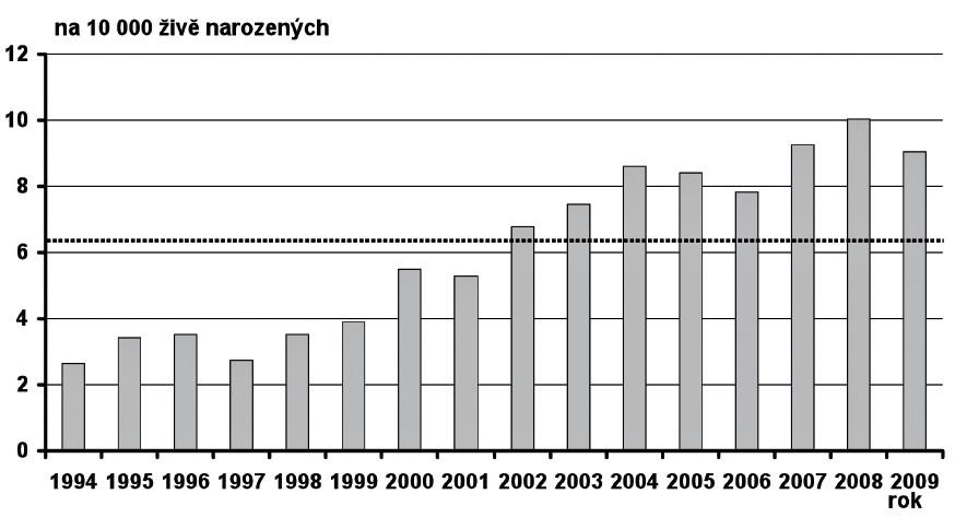 Prevalence ageneze/hypoplazie ledvin v České republice v období 1994–2009 Fig. 4. Prevalence of renal agenesis/hypoplasia in the Czech Republic in 1994–2009