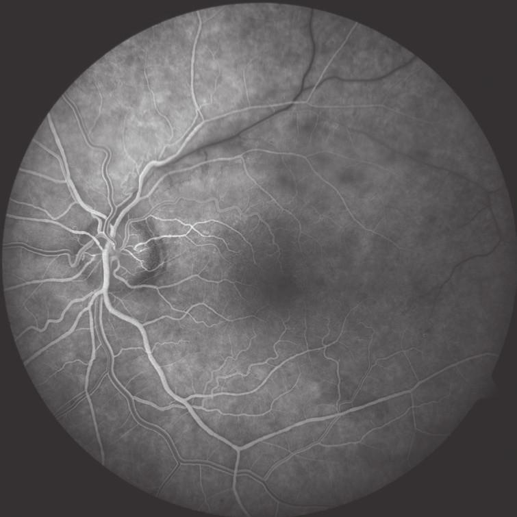 FAG po 1. roce léčby – v arteriovenózní fázi je patrné opožděné plnění vény periferně od uzávěru a přítomnost kolaterál