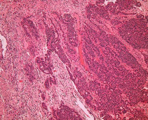 Infiltrativně rostoucí nádor, solidně, trabekulárně a naznačeně tubulárně uspořádaný. HE, 100krát