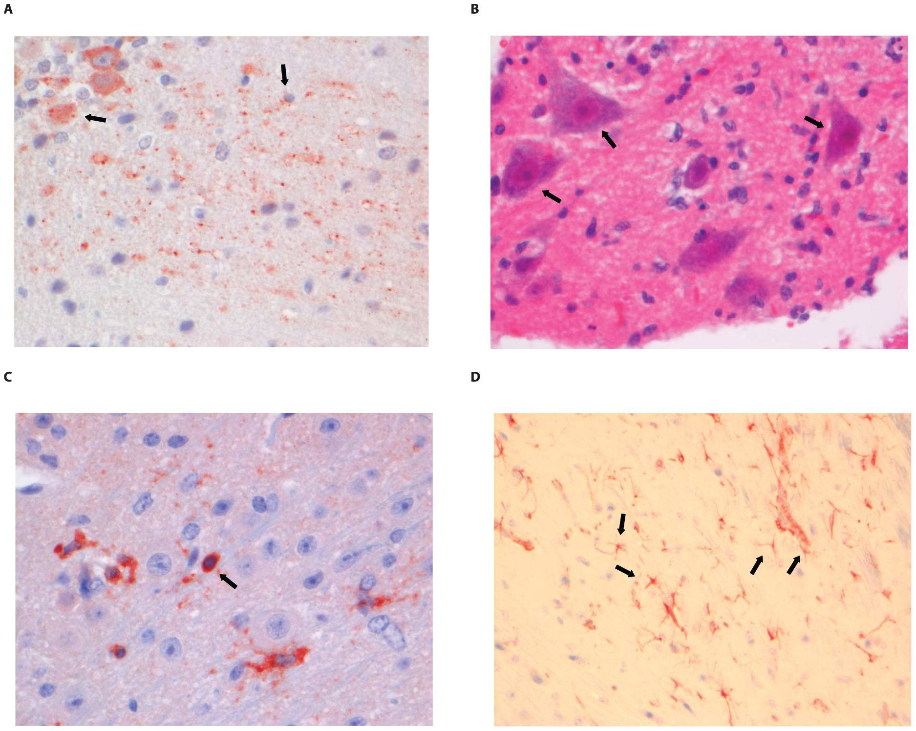 Histopathology of 8-week old BALB/c mice infected i.m. with 10<sup>6</sup> TCID<sub>50</sub> of SHBRV-18.