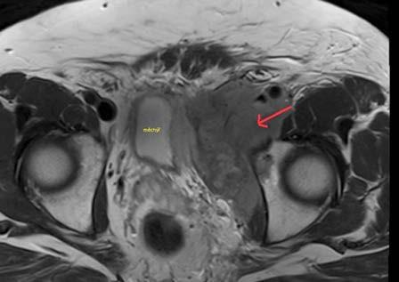 Magnetická rezonance pánve – expanze v oblasti levé poloviny malé pánve v těsném kontaktu s močovým měchýřem a s jeho dislokací napravo Fig. 4. Magnetic resonance imaging of the pelvis – expansion in the left part of the pelvis in close contact with bladder wall and dislocation the bladder to the right