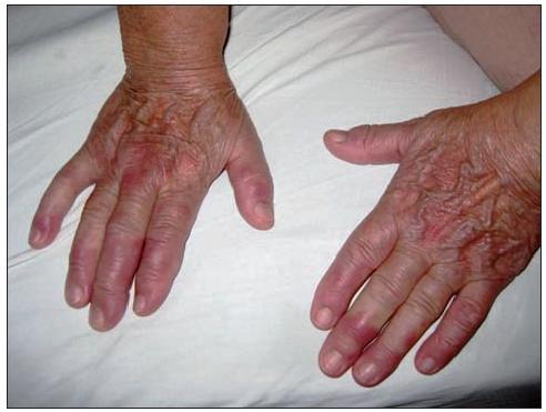 Erythema elevatum diutinum – dorzálna strana rúk