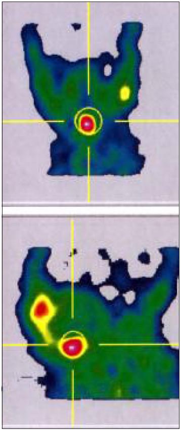 <sup>99m</sup>Tc scanem prokázaná ektopie štítné žlázy u děvčátka s kompenzovanou kongenitální hypotyreózou (TSH 43,48 mIU/l, fT4 23,3 pmol/l, tyreoglobulin před léčbou 77,89 mcg/l). Vyšetření bylo provedeno 10. den po zahájení substituce. Podle UZ reziduum nehomogenního hypoechogenního parenchymu s centrálními cystami v obou lalocích 2–4 mm. Matka dítěte má léčenou autoimunitní tyreoiditidu.