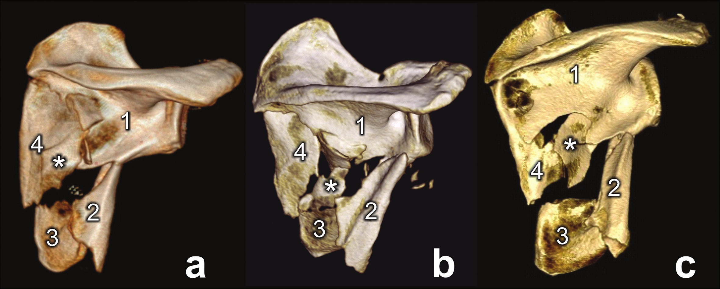 Types of comminuted fracture of lateral pillar (a, b, c) 1 – glenoid fragment, 2 – lateral border fragment, 3 – inferior angle fragment, 4 – medial border fragment, * - intercalary fragment.