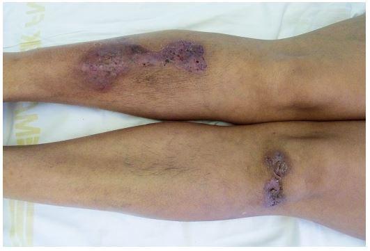 Hojící se projevy pyoderma gangrenosum u stejné pacientky