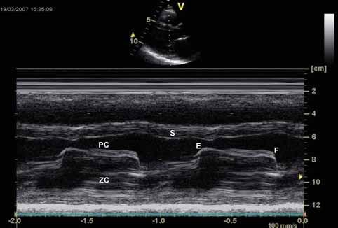 Echokardiografie u mitrální stenózy – M mode zobrazení. Plochý sklon E–F, paradoxní pohyb zadního cípu (ZC) k septu (S) a omezená separace cípů.