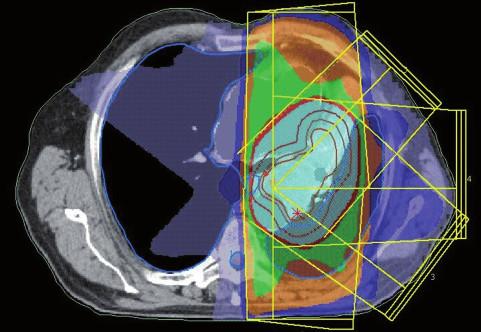 Dávkové rozložení pro konturaci z obr. 4. Světle modře je vyznačena 95% izodóza. Diskrétní zmenšení léčeného objemu.