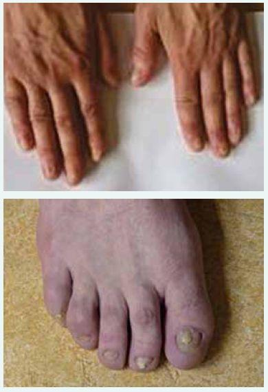 a obr. 7. Trvalé poškození nehtů s odstupem 2 let.