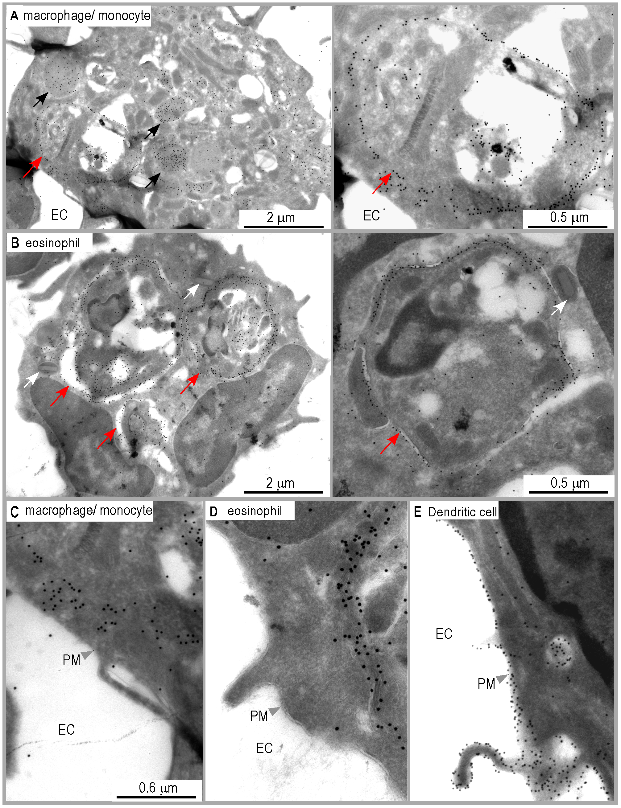 Distribution of I-A<sup>d</sup>/LACK complexes in eosinophil and macrophage intracellular compartments.