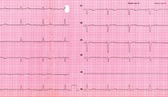 Pri prepustení po 24 hodinách nie sú na EKG prítomné poruchy AV prevodu, ani repolarizačné zmeny (klinický materiál III. internej kliniky LF UPJŠ a FGN L. Pasteura Košice).
