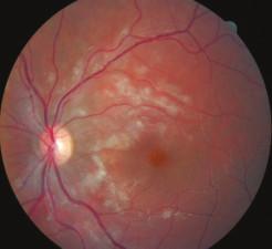 Ľavé oko, mesiac po zahájení liečby, takisto výrazné vstrebávanie belavých ložísk i krvácania na sietnici.