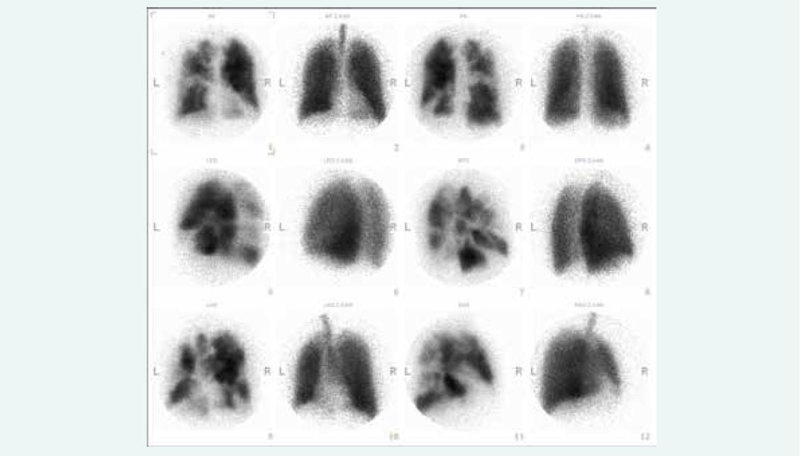 Ventilační a perfuzní scintigrafie plic u nemocného s chronickou tromboembolickou plicní hypertenzí zobrazující četné defekty v přítomnosti radiofarmaka na perfuzních scanech oboustranně