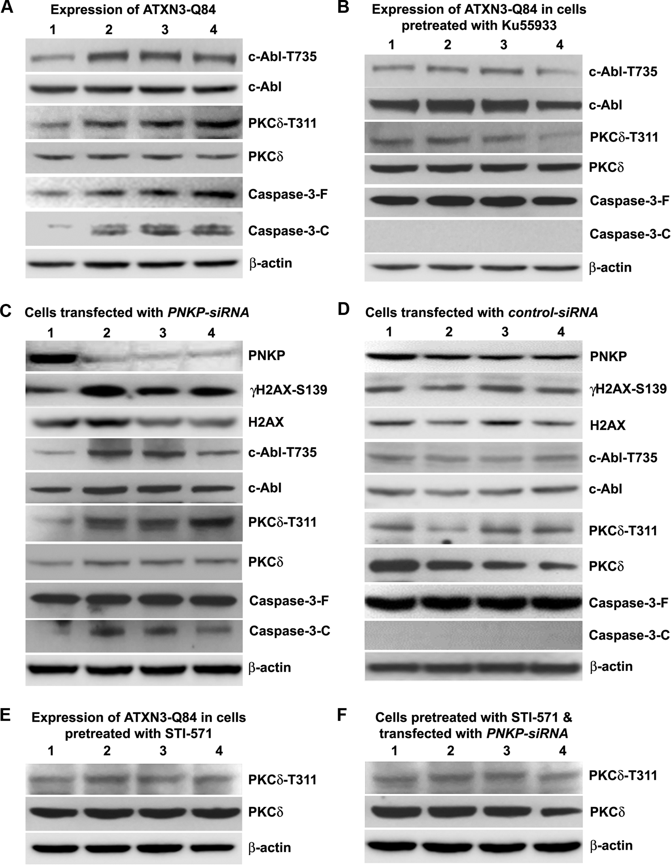 ATXN3-Q84 expression or PNKP deficiency activates the c-Abl→PKCδ signaling pathway.
