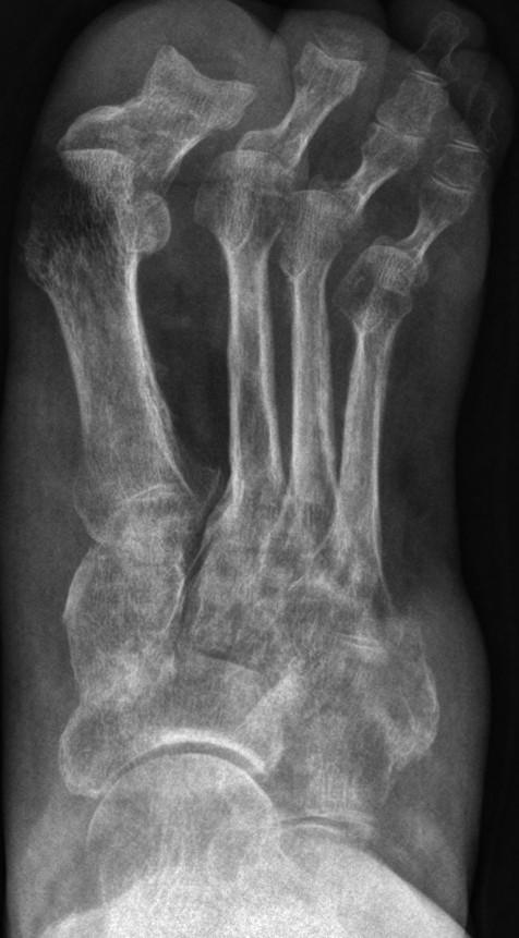 RTG obraz KRBS 1. typu stupeň II u pacientky s nekrotizující vaskulitidou s rozsáhlými defekty dolní končetiny (Bébarová et al. 2012)
